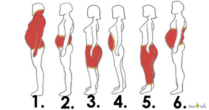 lipos - Υπάρχουν 6 τύποι σωματικού λίπους. Δείτε τι τους προκαλεί και πως να τους αντιμετωπίσετε