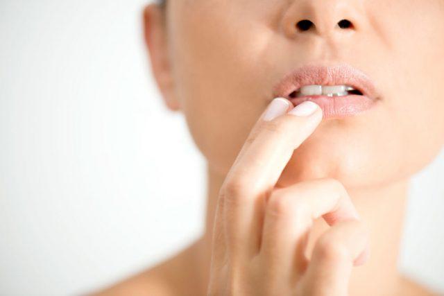 cold sore remedies pic 3 1024x683 640x427 - Γιατί δεν πρέπει να βάλεις ποτέ λάδι καρύδας στο πρόσωπό σου